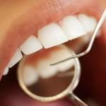 Ungas tänder frätskadade av drycker