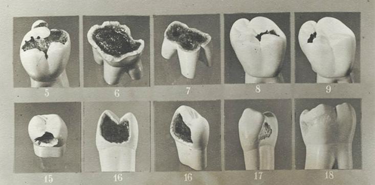 Bildresultat för Vipeholmsexperimenten